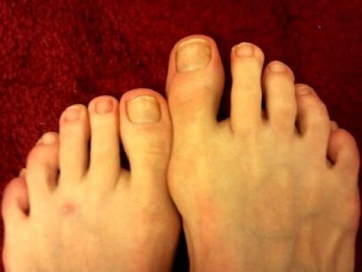 Feet February 15