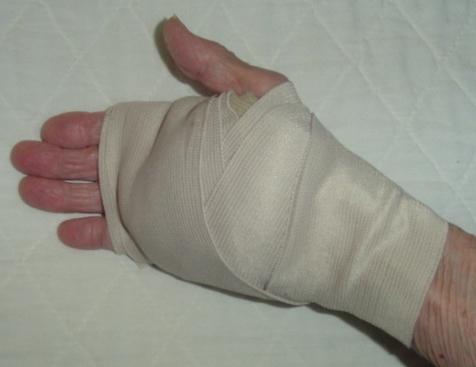 Bandaged hand after surgery