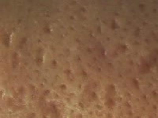 Ice Pick Scar
