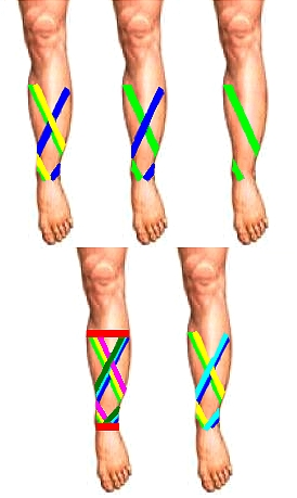 Binding techniques for Shin Splints