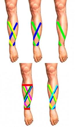 Binding techniques for Shin Splints