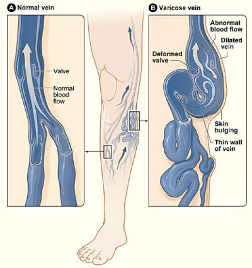 Diagram showing a normal vein and one that has become a varicose vein.