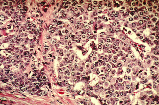 Histologic slide of Breast Cancer Cells. Source: Wikimedia Commons, Public Domain, National Cancer Institute.