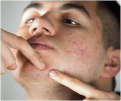 5 Tips to Help You Get Rid of Acne and Spots