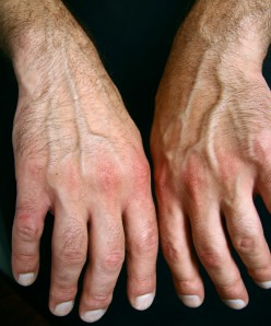Home Remedies for Wrist and Hand Pain