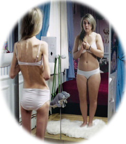 Recognizing Body Dysmorphic Disorder