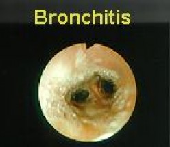 Nursing Management with Bronchiolitis