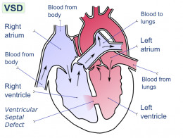 A heart with a VSD - ventricular septal defect