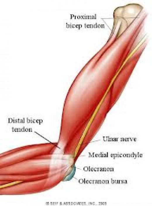 Ruptured tendon