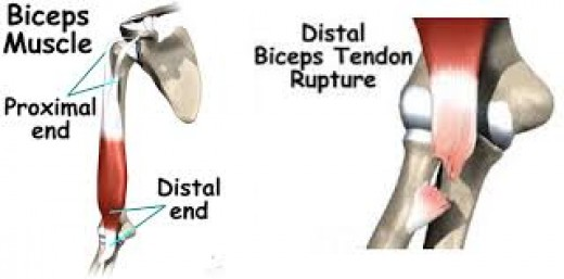 A ruptrued tendon can be painful and uncomfortable