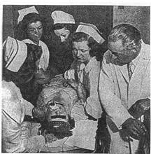 This is one of the first pictures ever taken of electro-convulsive therapy.
