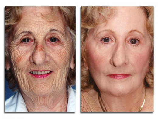 Rejuvenation It Is Possible To Reverse Signs Of Ageing