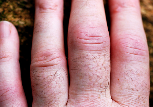 Inflammation in middle knuckle of hands are very common in arthritis sufferers.