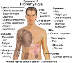 How Fibromyalgia Affected My Life
