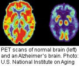 The brains of people with Alzheimer's show significant differences from those who do not have Alzheimer's