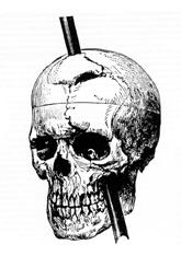 The answer: Phineas Gage! And what approach does he relate to? ---- Biological -----