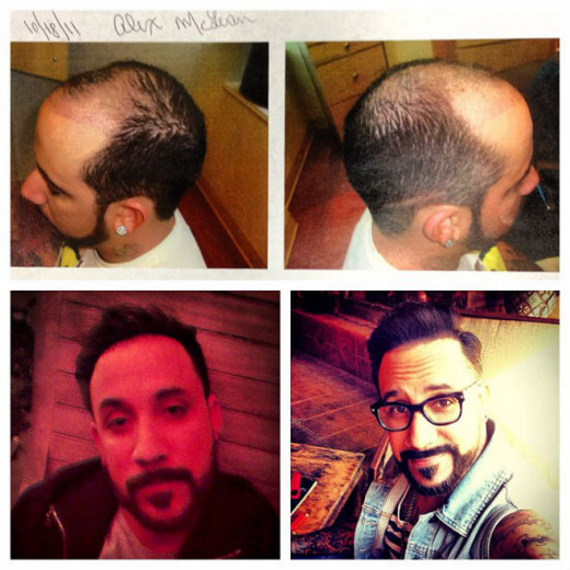 AJ McLean of Backstreet Boys shared the results of his hair restoration procedure on Instagram