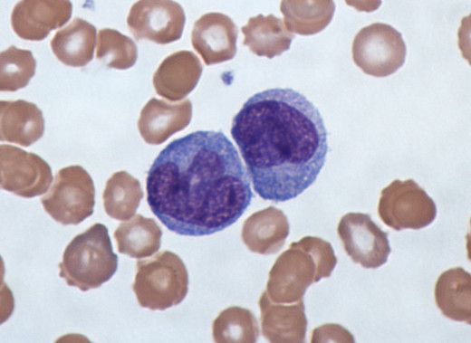 An example of WBCs on stained blood smear. The tiny specs are the platelets.