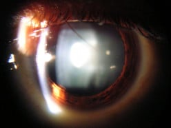 You Have Cataracts? Don't Worry, Here's Everything You Need to Know about Cataract Surgery