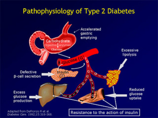 Get cured of Pre diabetes Symptoms