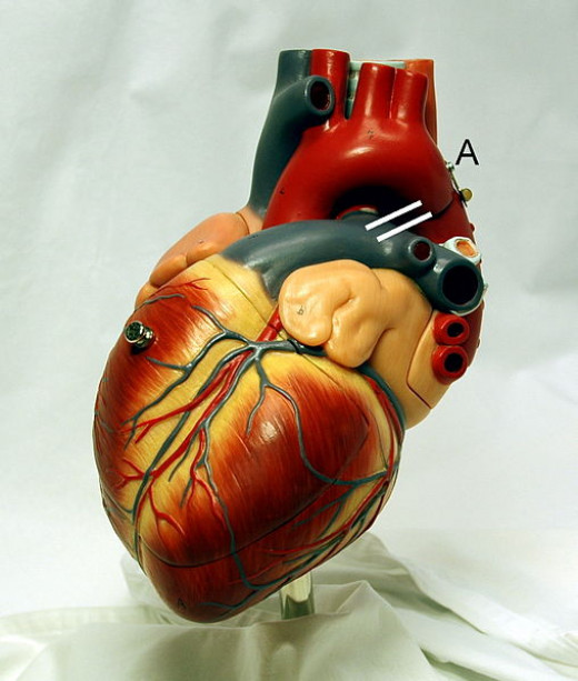 Photograph of a heart model, with position of a persistent ductus arteriosus drawn in between aorta and pulmonary artery.