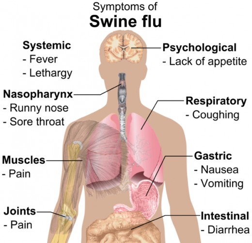 Swine Flu is a respiratory illness but it can affect other parts of the body as well.