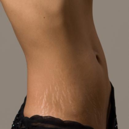Get rid of Stretch marks