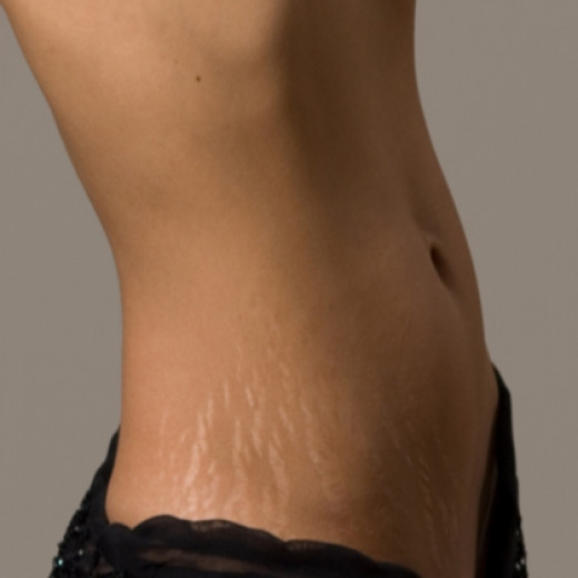 How To Get Rid Of Stretch Marks! Causes, Prevention