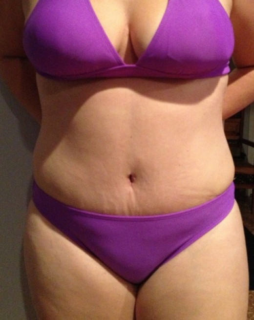 Advanced Treatments for Stretch Marks