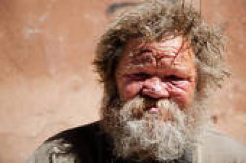 Manic Depressive and Homeless