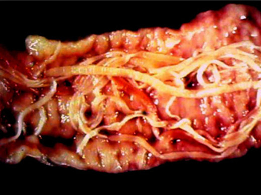 Parasites inside the pigs' belly~