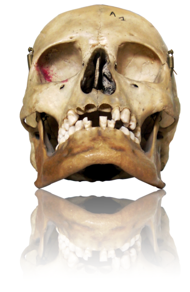 Human skulls and other bones were used in old medicine recipes.