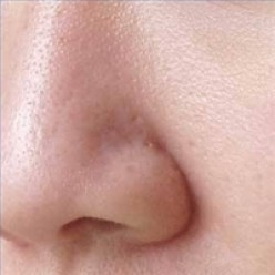 How to reduce the visibility of skin pores on your body and face naturally.  Minimize and diminish visible pores now!