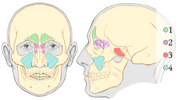 Sinus problems can lead to bad breath