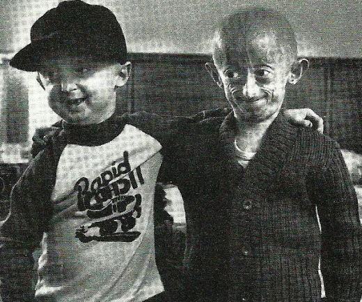 Premature Aging (Progeria) seen in boys