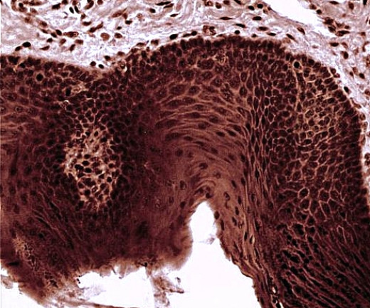 Histology slide of a taste bud