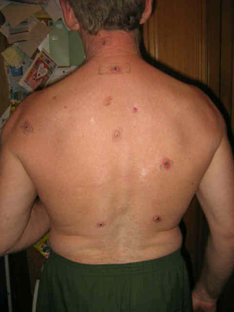 Skin cancer on back