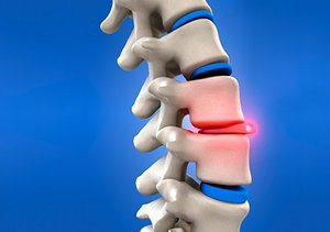 A slip disc (or spinal disc herniation) is a medical condition whereby the outer, fibrous ring of an intervertebral disc ruptures and allows the soft, central portion to bulge out, pressing against the spinal cord and triggering a sensation of pain.