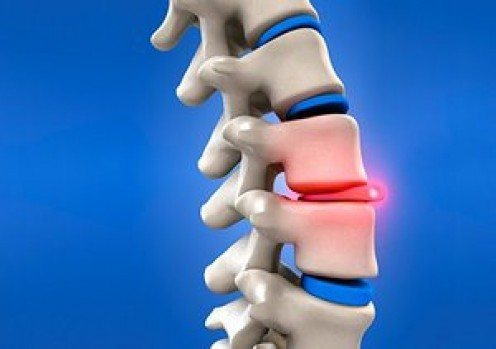 Slipped Disc and Acupuncture: A Personal Experience