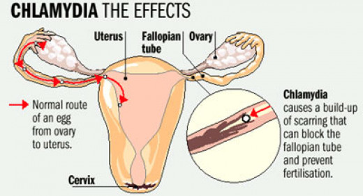 Chlamydia can cause Fertility Issues