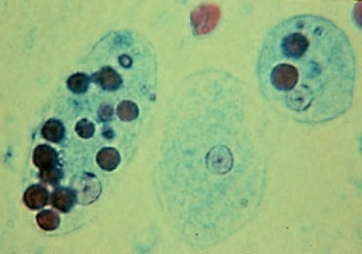 A stained trophozoite of Entamoeba histolytica (on the left) which has eaten red blood cells
