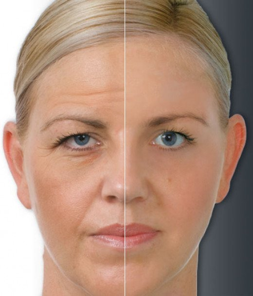 Before and after results of skin treatment