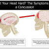 Hit Your Head Hard? The Symptoms of a Concussion