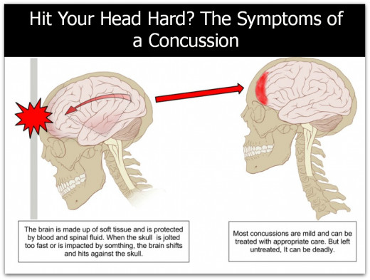 What does it mean when you have a headache and your ears are ringing