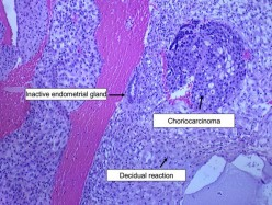 Choriocarcinoma Cancer - Symptoms, Pathophysiology, Diagnosis and Treatment