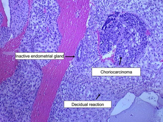 Micrograph representing endometrial biopsy showing choriocarcinoma with endometrial biopsy