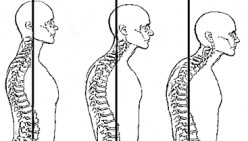 How To Treat Forward Head Posture