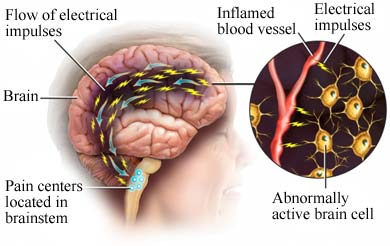 The nerve pain path