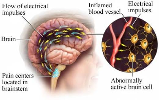 The nerve pain path