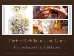Purine Rich Foods and Gout: How to Lower Uric Acid Levels